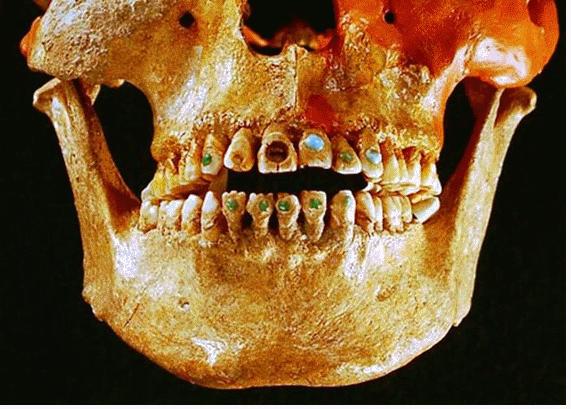 Breve repaso a la historia de la Odontología con la Clínica Dental Urbina en Salamanca